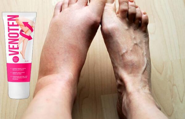 κρέμα κιρσοί πόδια